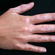 vitiligo image