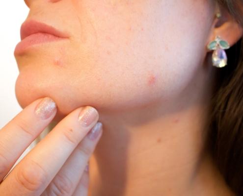 acne 1606765 1920